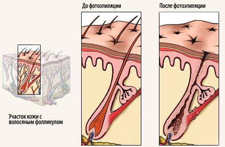 Отзывы по фотоэпиляции: удаление волос надолго и без боли