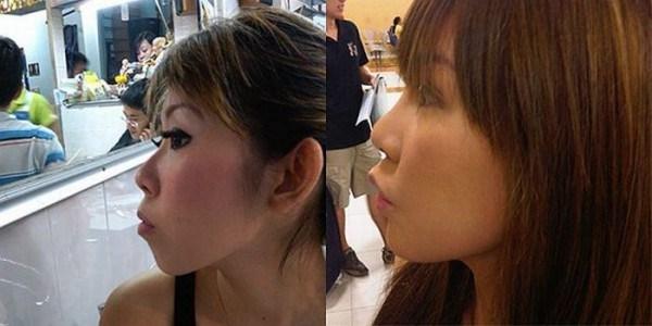 Устранение дефектов внешности