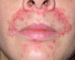 Правильное лечение себореи кожи