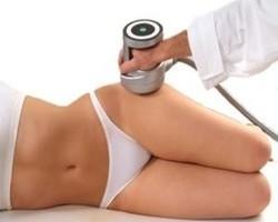 О процедуре липосакции ультразвуком