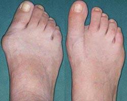 Шишки на пальцах ног. Большие косточки на ногах