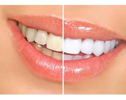 Отбеливание зубов: методы и способы