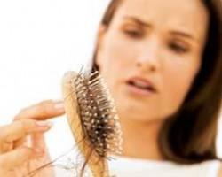 Как решить проблему выпадения волос?