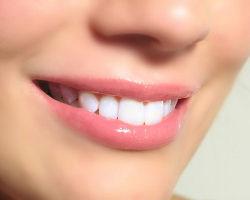 Полезные советы для отбеливания зубов