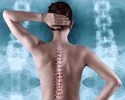 Здоровье женщины: коварный остеохондроз