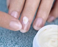 Чем укрепить слабые и гибкие ногти?