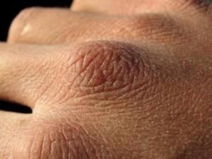 Воздействие кондиционера на кожу лица и рук