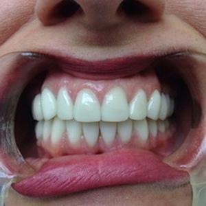 Отбеливание и лечение зубов